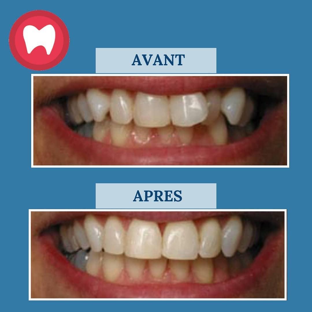orthodontie à casablanca clinique dentaire la colline
