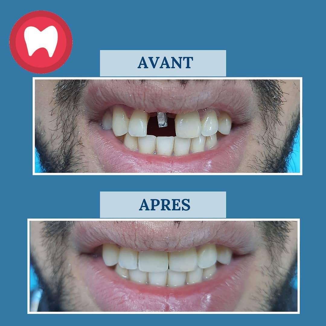 Implant dentaire au niveau de l'incisive centrale.