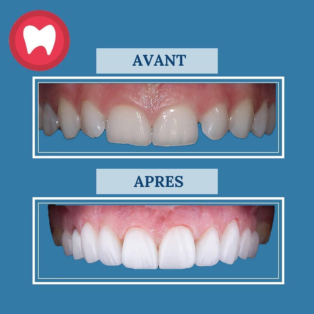 facette dentaire à clinique dentaire la colline à casablanca