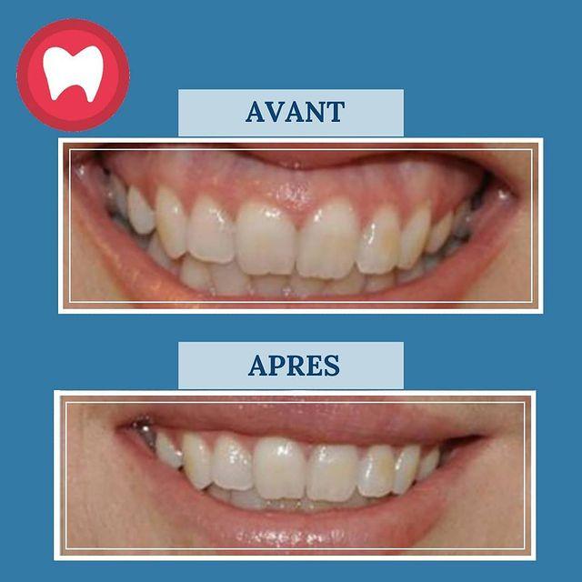 cas de gingivectomie au laser repositionnement de la lèvre supérieure à clinique dentaire à sidi maarouf Casablanca