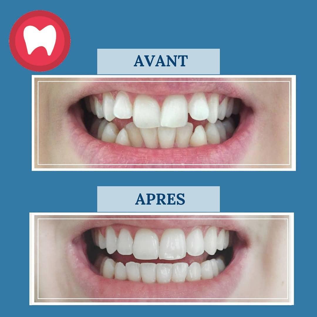 cas d'orthodontie invisalign casablanca