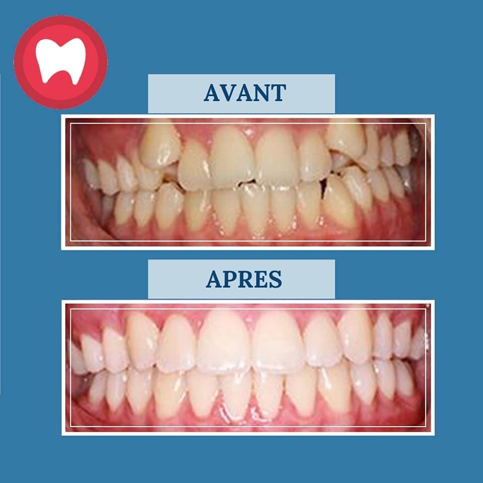 cas d'orthodontie par notre orthodontiste à casablanca