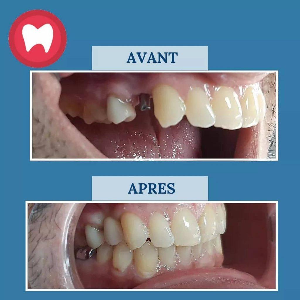Implant dentaire remplaçant la prémolaire