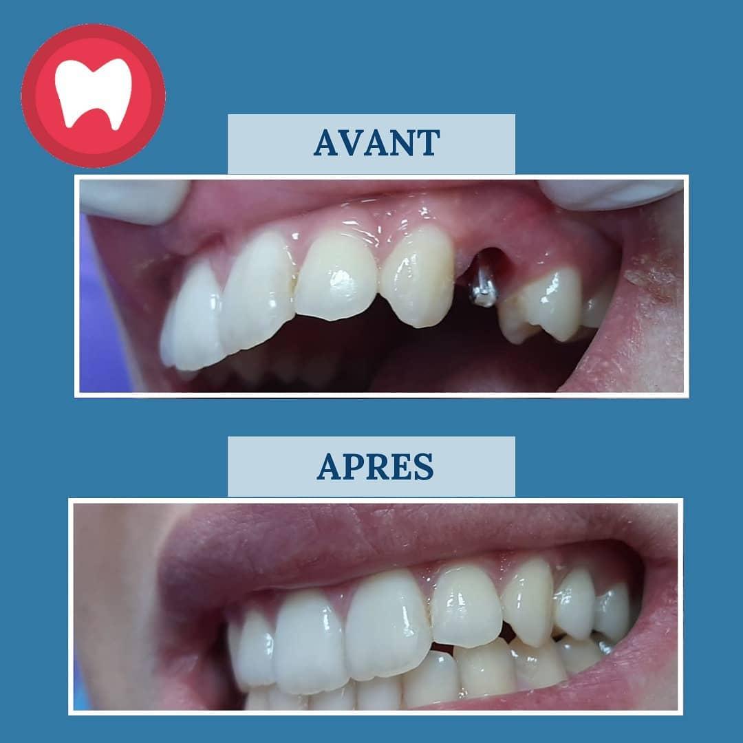 Implant dentaire au niveau de la prémolaire à casablanca