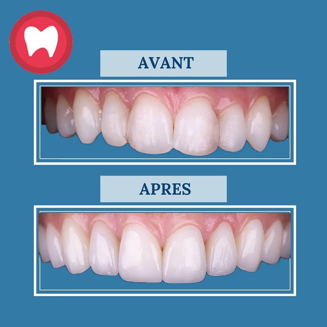 cas de facettes dentaires à casablanca clinique dentaire la colline