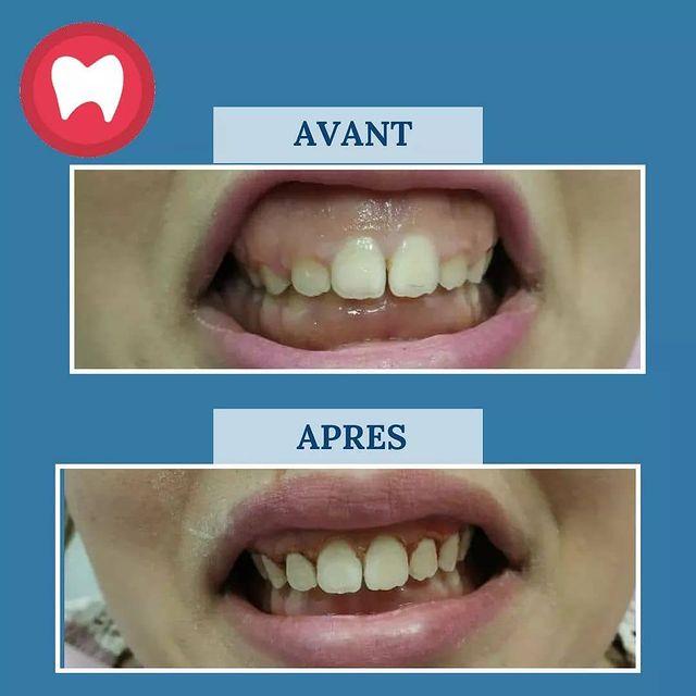 cas de repositionnement de la lèvre supérieure à clinique dentaire la colline