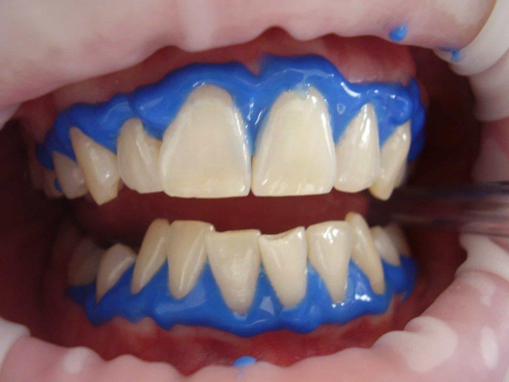 blanchiment dentaire au laser à casablanca