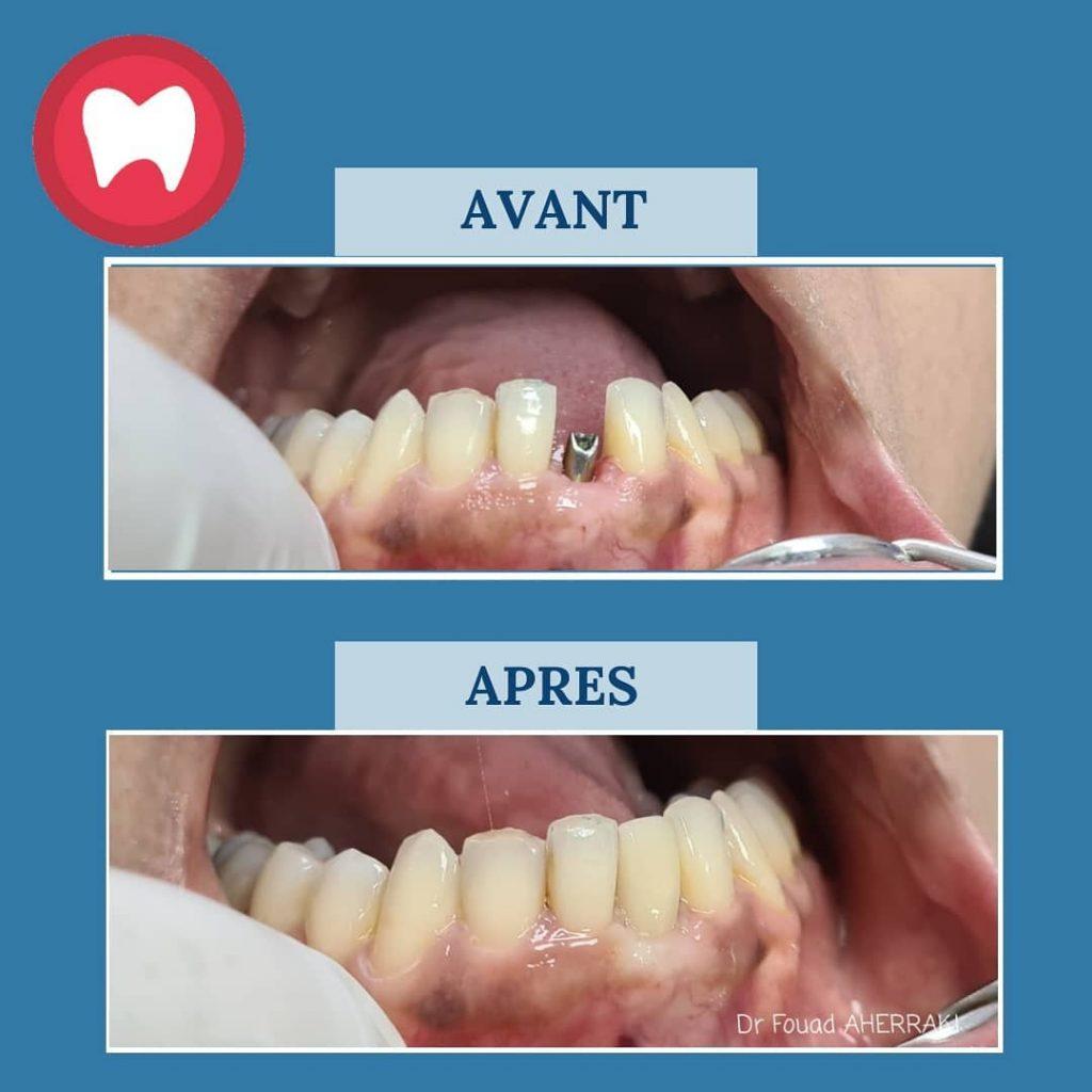 implant dentaire au maroc